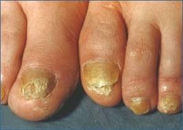 Le vernis le traitement onikhomikoza des ongles
